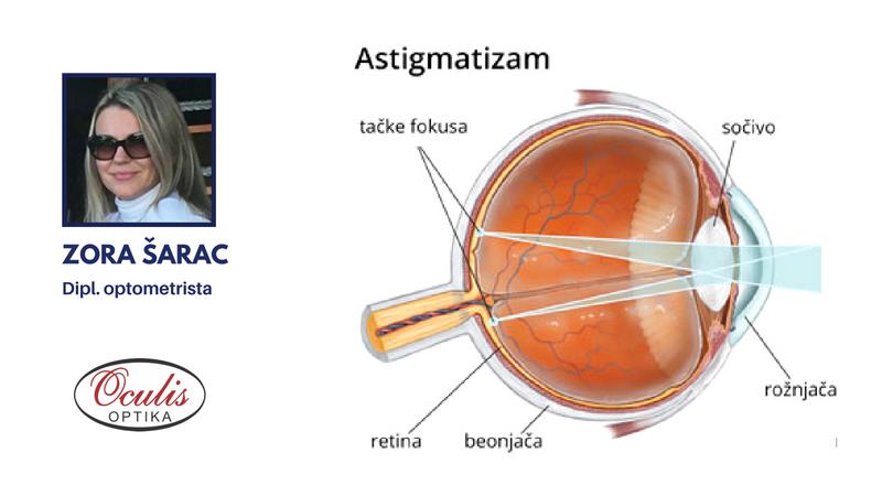 Astigmatizam oka – test, simptomi, lečenje