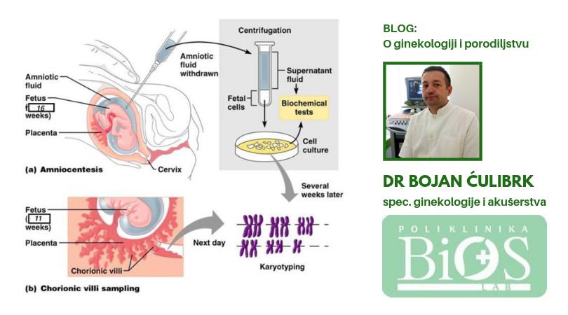 Invazivna prenatalna dijagnostika – biopsija horionskih čupica (CVS)